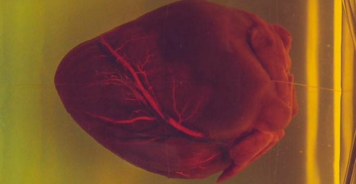 Stents more effective for patients with stable high-risk heart disease