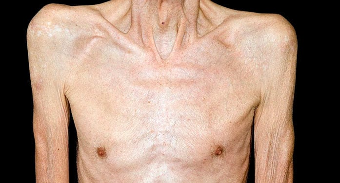 Muscle wasting syndrome cause of many cancer-related deaths